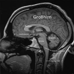 Die Länge aller Nervenbahnen des Gehirns eines erwachsenen Menschen beträgt etwa 5,8 Millionen Kilometer